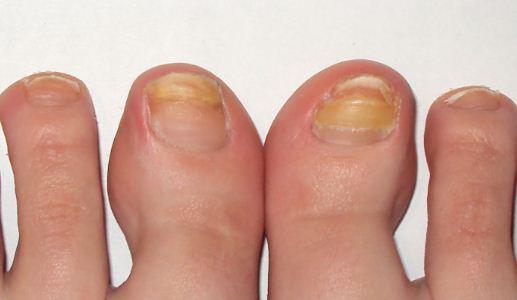 Грибки и заболевания ногтевой пластины фото