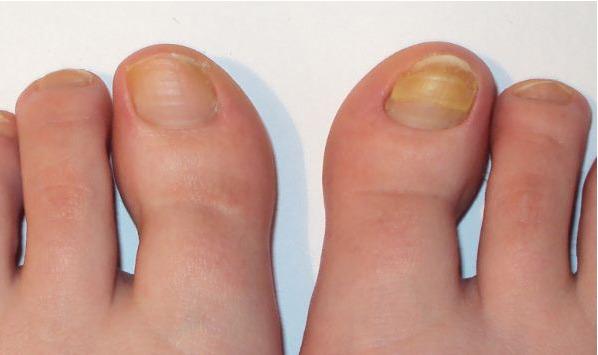 Лечение вросшего ногтя лазером цена спб